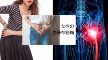 坐骨神経痛(子宮筋腫を摘出している方)