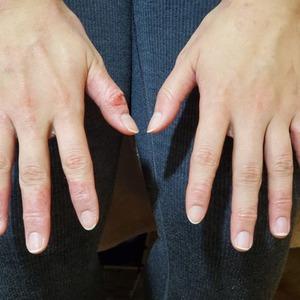 何度も繰り返す手の指の荒れ。湿疹。/京都 あき鍼灸院