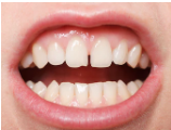 すきっ歯.png