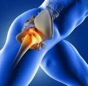 股関節手術後のアンケート